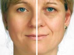 Prije i nakon tretmana bora