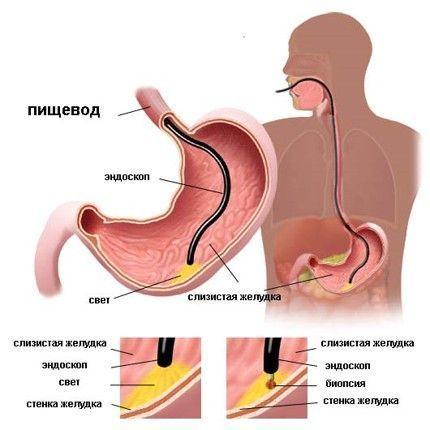 endoskopije