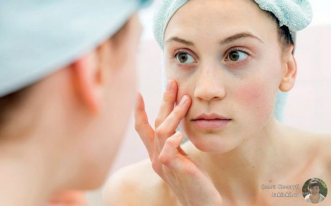 Как убрать темные круги под глазами: косметология с фото до и после