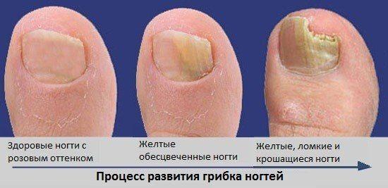 Как развивается грибкок ногтей
