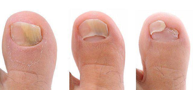 Деформация ногтей на ногах из-за грибка