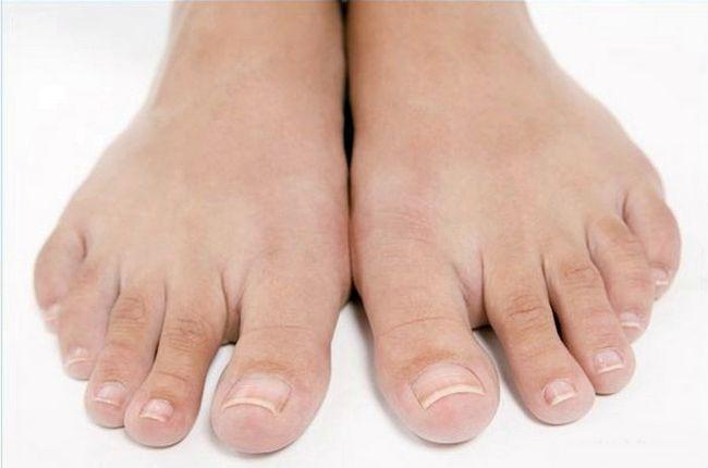 Пример здоровых ногтей