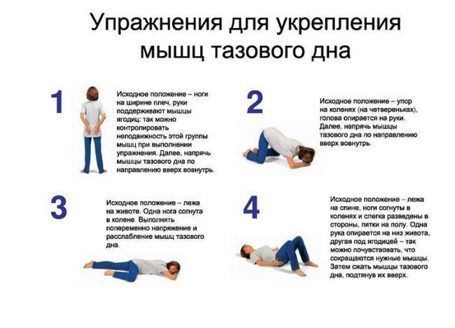 Kegelove vježbe za mišića karlice urepleniya