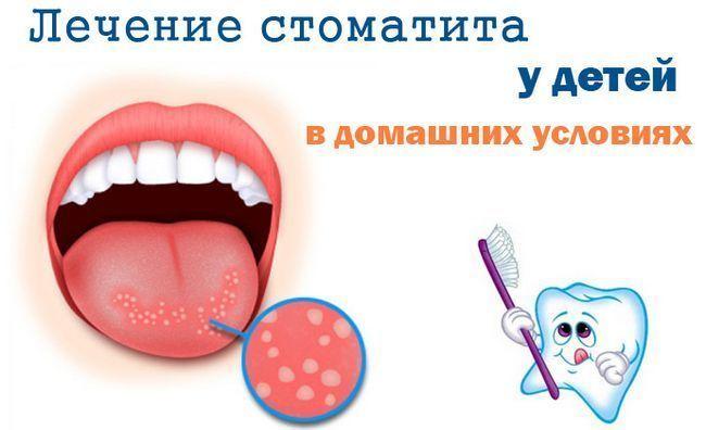 Liječenje djece stomatitis
