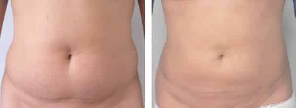 До и после лазерной липосакции