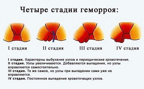 Četiri faze u slici