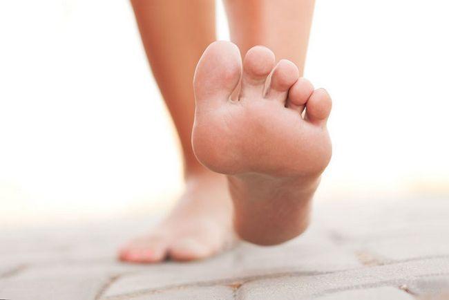 Лечение грибка ногтей на руках и ногах