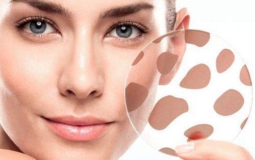 Kozmetika staračkih pjega na licu