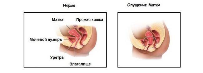 Što znači materice prolaps i šta je to