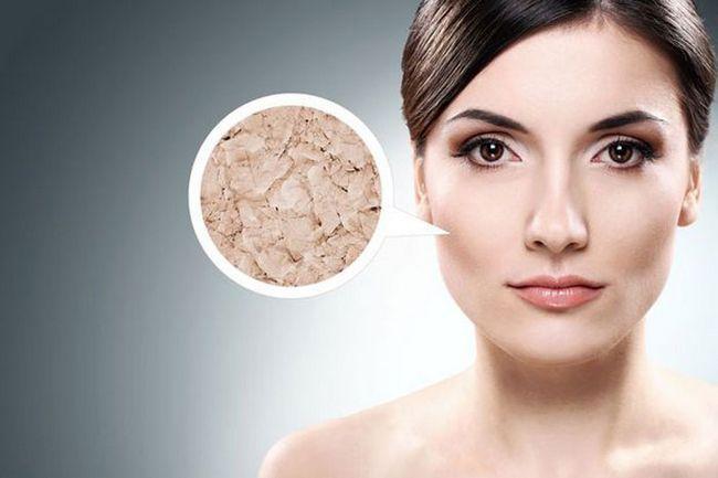 Причины очень сухой кожи тела: как от них избавиться